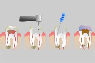 When tooth decay progresses to the nerve and vascular layer of the tooth or if there is a loss of vitality of