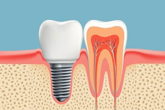 A dental implant is a small titanium screw that is usually placed in place of the root portion of a missing